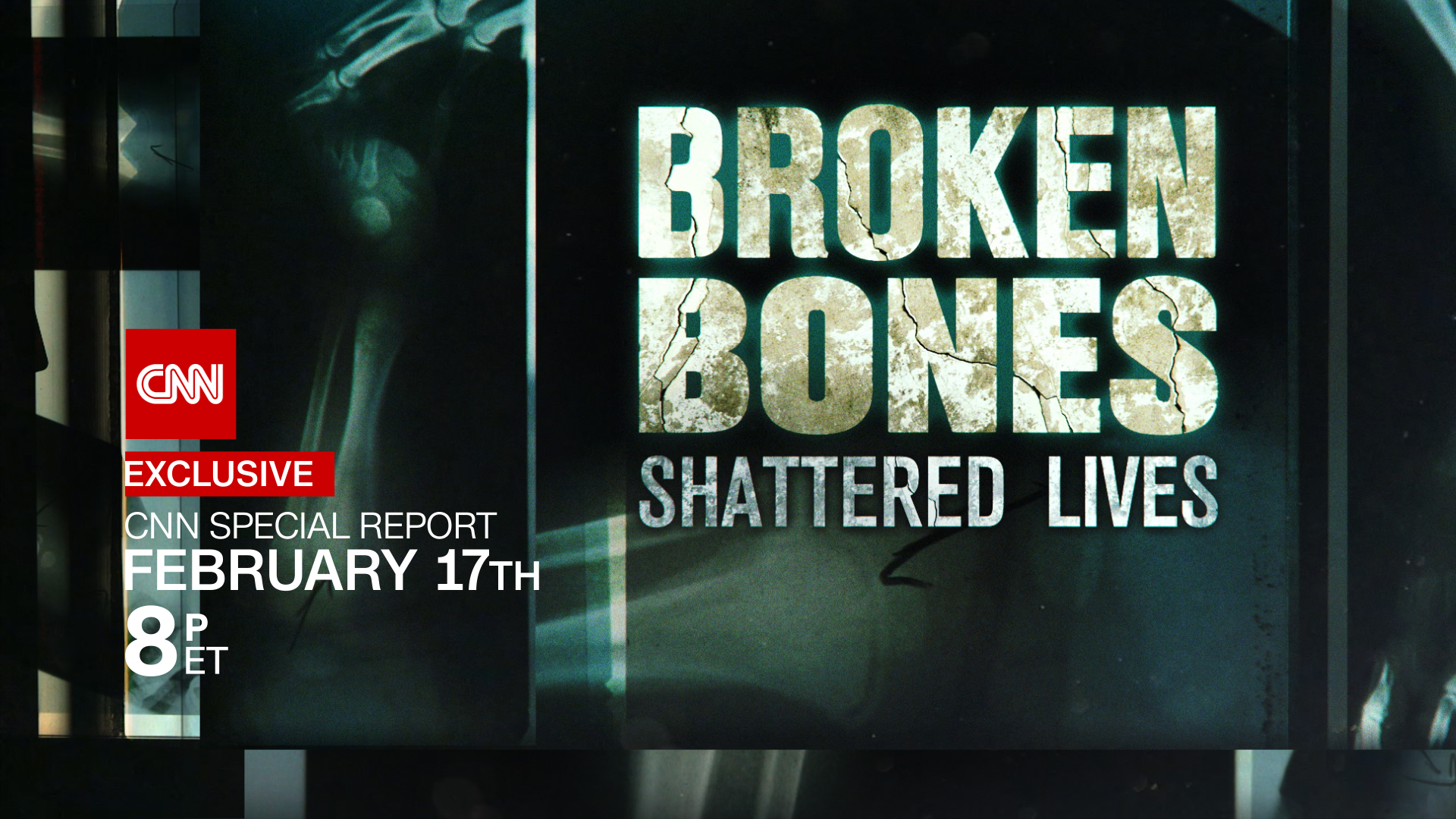 Cnn Special Reports Broken Bones Shattered Lives