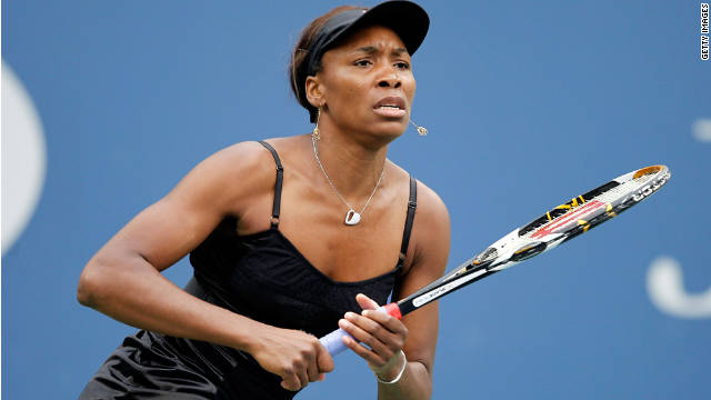 Elite athletes like Venus Williams may be more likely to receive an earlier diagnosis.