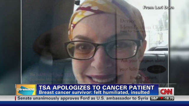 TSA apologizes to cancer survivor