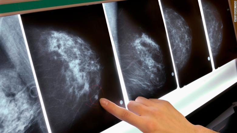 Study:Breast cancer in young women rises