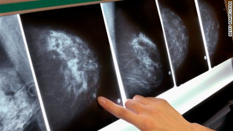 Study sheds light on the 'other' breast cancer genes