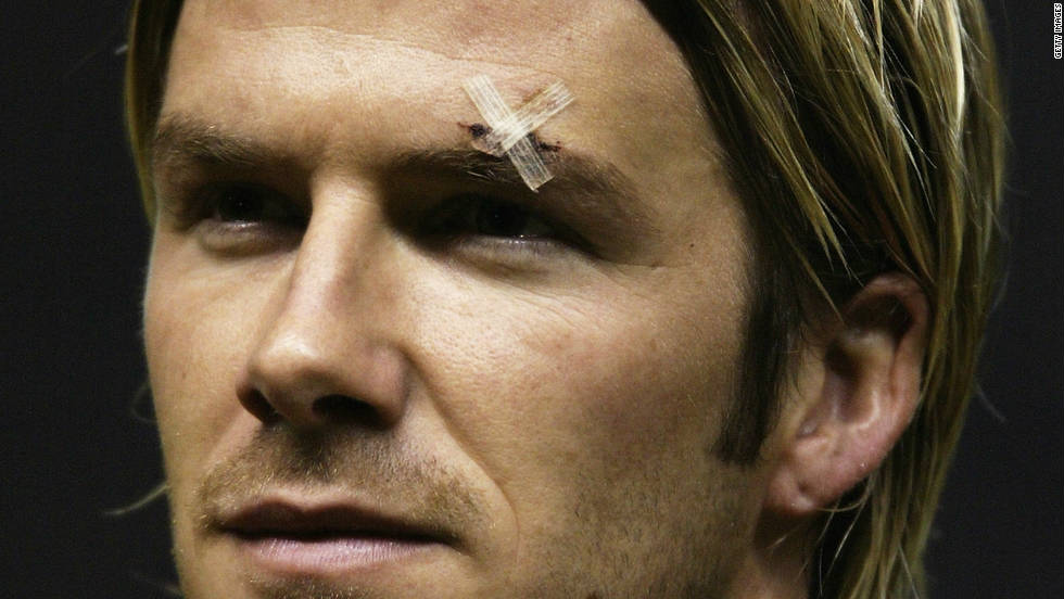 "In February 2003, Ferguson reacted to an FA Cup loss to Arsenal by kicking a boot in the direction of his most famous player. The boot hit Beckham on the forehead and prompted a media furore, but Ferguson refused to apologize. ""If I'd tried it 100 times or a million times, it wouldn't happen again. If it did, I would carry on playing,"" he said."