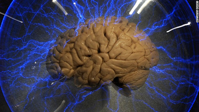 An actual human brain displayed inside a glass box, as part of an interactive exhbition 'Brain: a world inside your head', in Sao Paulo, Brazil, on August 21, 2009.