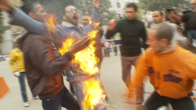 Worker sets himself afire in job protest