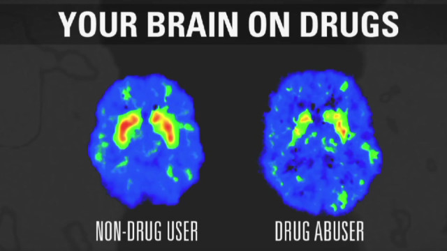 How addiction changes your brain