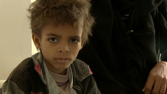 Treating Yemen's malnourished kids