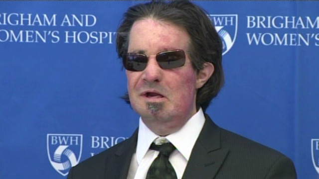 Face transplant patient reflects on life