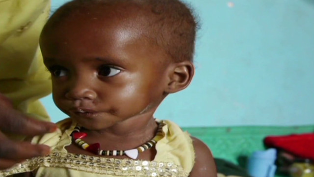 One million kids at risk of malnutrition