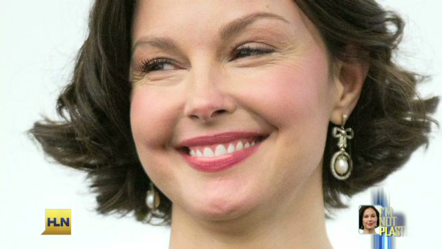 Ashley Judd responds to surgery claims