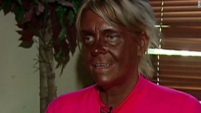 A New Jersey grand jury declined to indict Patricia Krentcil for allegedly allowing her 5-year-old daughter to use a tanning bed.