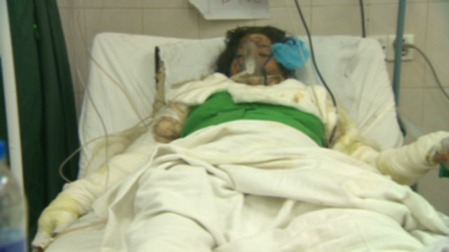 Acid attacks on the rise in Pakistan
