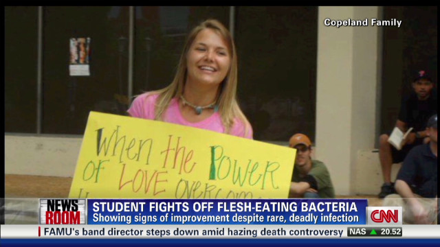 Student fights flesh-eating bacteria