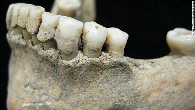 Dental calculus: ancient diets revealed