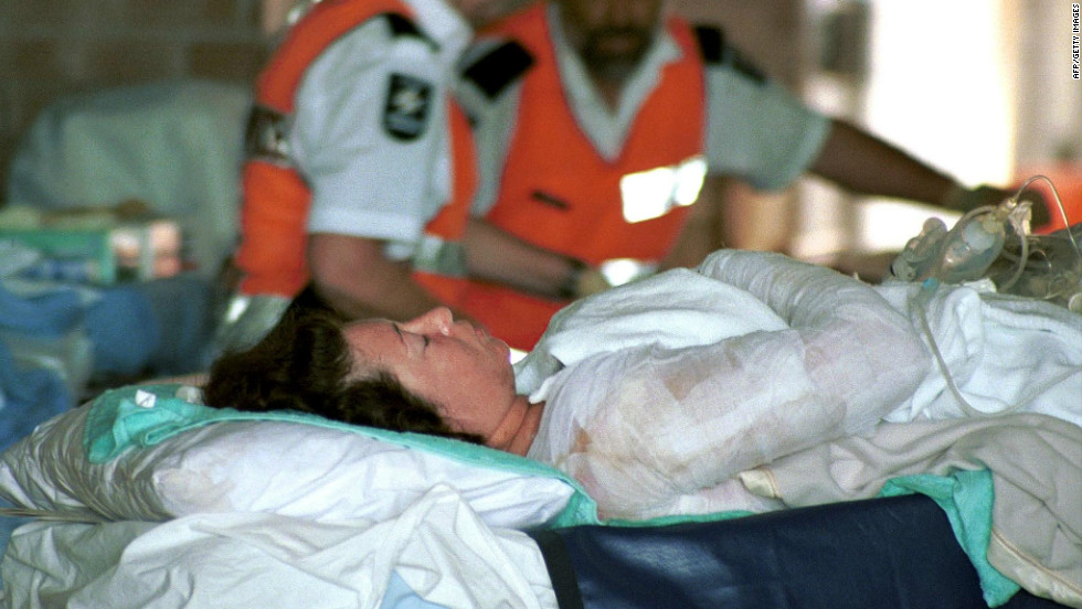 A badly injured victim of the Bali bomb blast arrives at Darwin Hospital on October 14, 2002, for urgently required medical attention after being airlifted from Denpasar. Hundreds of people were injured in the multiple blasts.