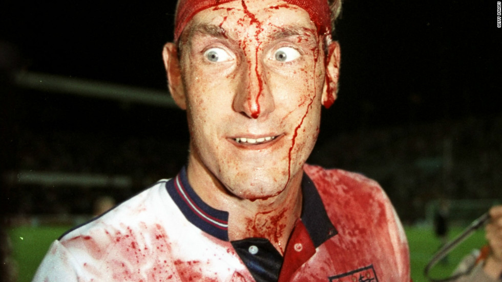 "This iconic image of bloodied former England defender Terry Butcher taken in 1989 during a World Cup qualifier embodies the ""warrior"" style in which the country has always played. It is an approach based on bravery, endeavour and hard work but it has not  brought any success since the 1966 World Cup -- England's only major tournament victory."