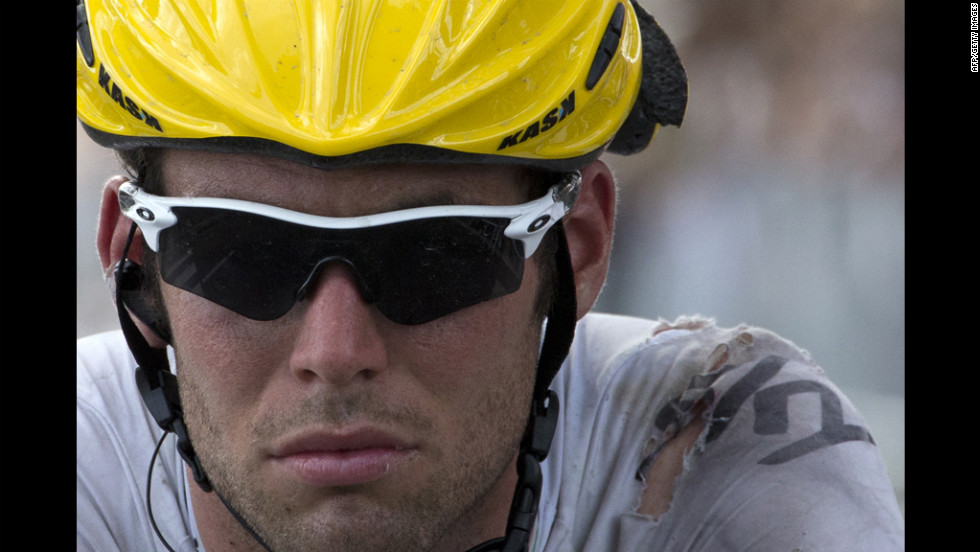 Cavendish rolls to the finish with visible injuries and damage to his jersey and helmet after crashing near the finish.