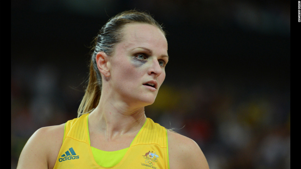 Australian guard Jennifer Screen competes in the women's bronze medal basketball game between Australia and Russia.