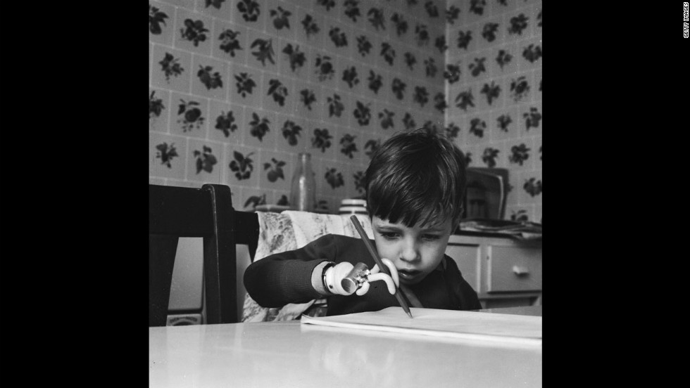 Brett Nielsen, 4, practices writing with his artificial arm in 1964. His birth defect was caused by Thalidomide.