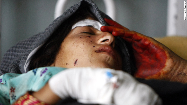 A wounded woman gets treatment at a hospital after the air strikes on Sunday, September 16.