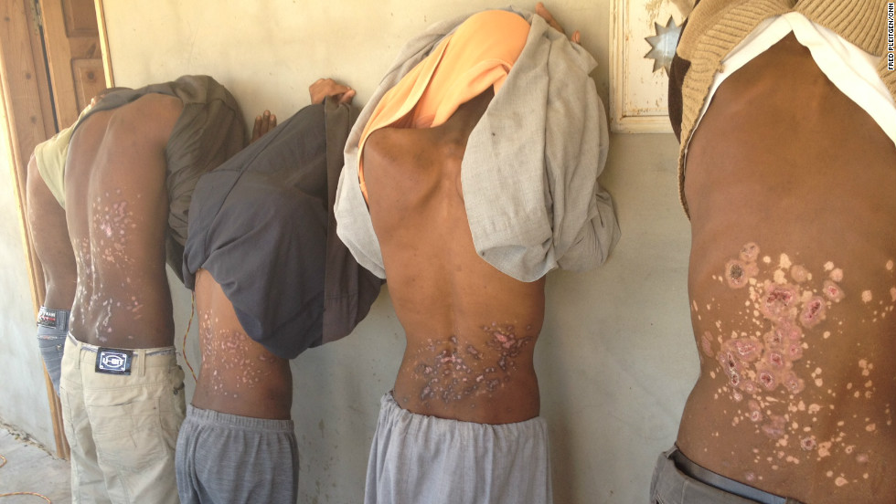Eritrean refugees show the scars they say were caused by people traffickers melting plastic on their backs.