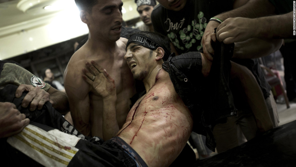 "Friends lay a rebel fighter on a gurney after he was shot in the chest during heavy battles in the Midan neighborhood on Monday. <a href=""http://www.cnn.com/2012/07/16/middleeast/gallery/syria-unrest/index.html"">See photographs from September.</a>"