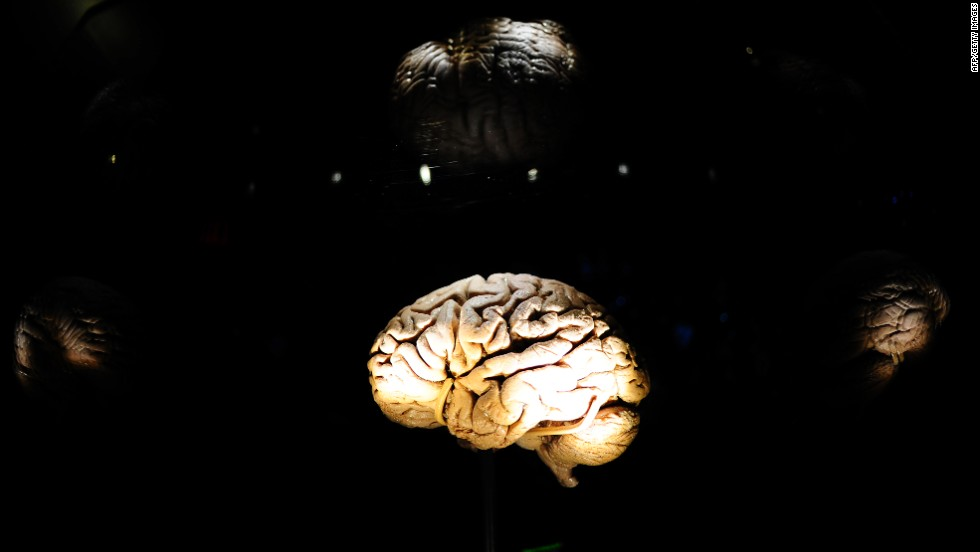 Link found between oversized waists and smaller brains - research