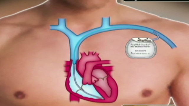 cnne noti cardiac device intv_00020512