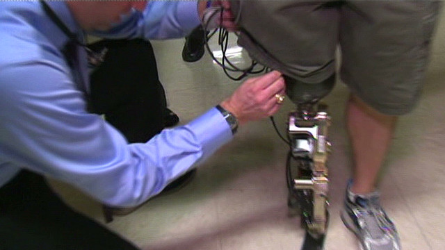 Bionic leg propels man up 103 flights