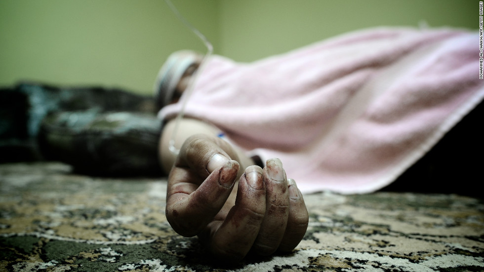 A Bahraini Shiite man lies in his house after being wounded in the clashes.