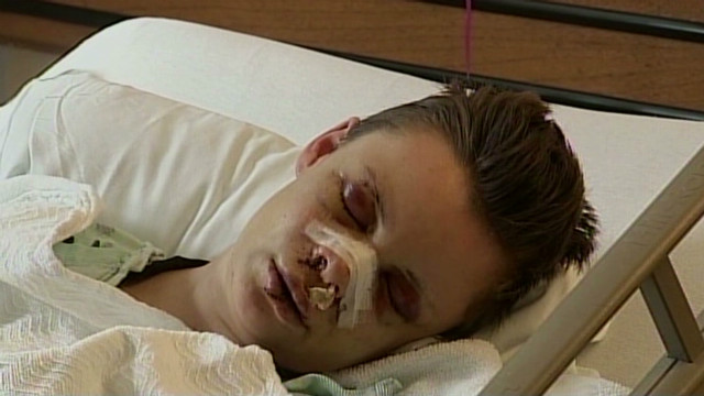 Lesbian victim: Beating not a hate crime