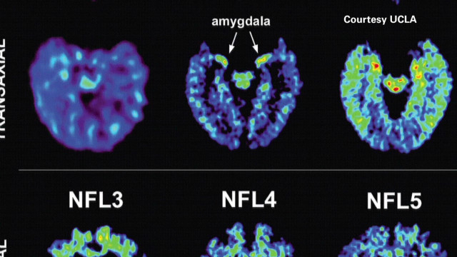 Closer to diagnosing NFL brain disease?