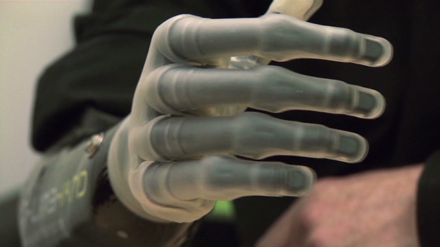 The bionic hand with the human touch