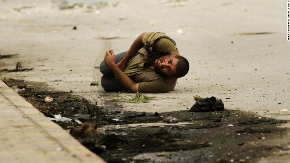 A man lies on the ground after being shot by a sniper for a second time as he waits to be rescued by members of the Al-Baraa Bin Malek Battalion, part of the Free Syria Army's Al-Fatah brigade, in Aleppo on October 20, 2012.