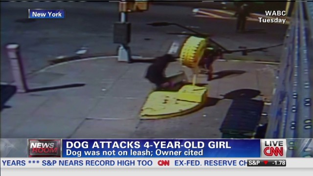 Dog attacks 4-year-old girl
