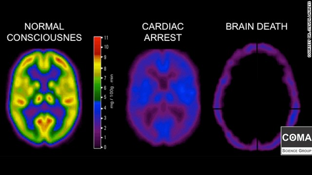 Scans compare neurological activity in a brain that is healthy, one that is comatose and another that is dead