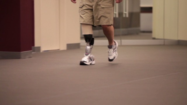 Bionic man plans to help amputee victims