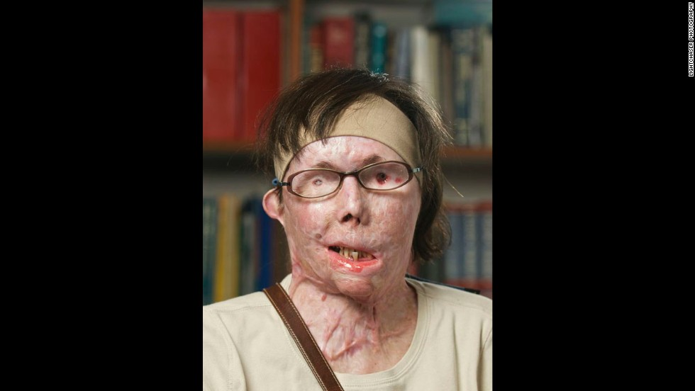 Tarleton appears in July 2011 before her face transplant surgery. She is totally blind in one eye and partially blind in the other.