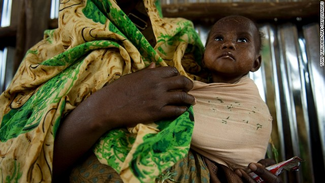 In a file photo, a mother waits with her malnourished child at a feeding center in Dollow, northern Somalia.