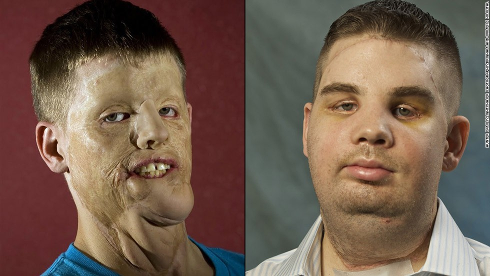 Mitch Hunter suffered significant injury after a car accident in 2001. After a face transplant, he now has near-normal sensation, and his speech has continued to improve.