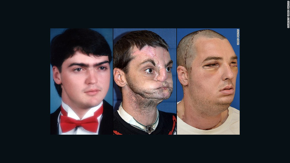Richard Norris had a gun accident in 1997, and wore a surgical mask for 15 years to hide his face from the world. He is shown, left, in high school in 1993; center, after the gunshot injury; right, after face transplant surgery.