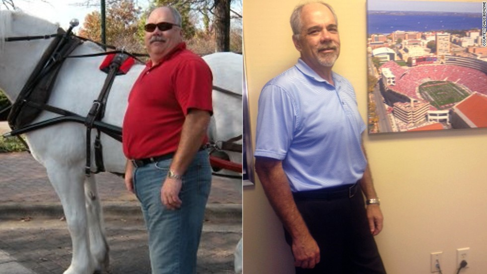 "The doctor had flat out told Dale Benzine: ""Lose weight or die."" Benzine decided to get gastric bypass surgery, reducing his stomach to the size of a golf ball. He's <a href=""http://www.cnn.com/2013/05/17/health/dale-benzine-bariatric-surgery/index.html"">dropped 130 pounds</a> by eating small, healthy portions multiple times a day."