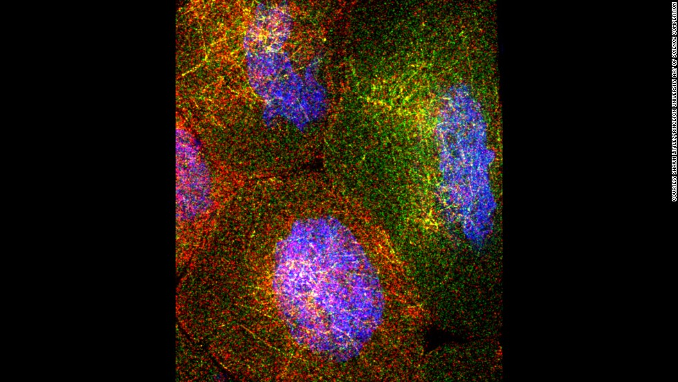 "Molecular biology researchers zoomed in on the ovary of a fruit fly. In this image, four ""nurse cells"" are shown, which are part of the egg chamber of the ovary. The intricate network of RNA molecules are represented by the red and green dots, and DNA is shown in blue. This image won first place, as judged by the community."