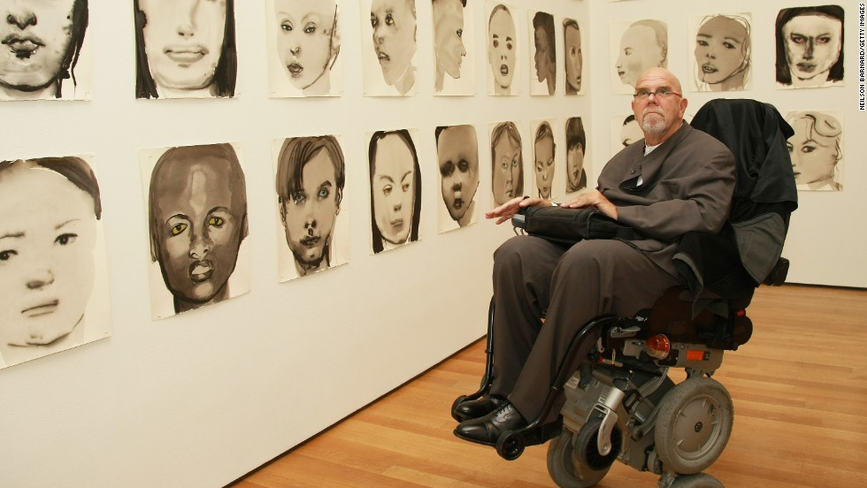 "Artist Chuck Close, best known for his giant face portraits, says he suffers from the condition. He said in an <a href=""http://www.radiolab.org/blogs/radiolab-blog/2010/jun/15/strangers-in-the-mirror/"" target=""_blank"">interview with RadioLab</a> that he paints faces by dividing a photo up on a grid."