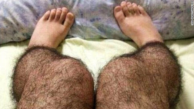 "Real or fake? ""Hairy leg"" stockings appeared on China's Sina Weibo microblogging site as a suggested way to fend off perverts."