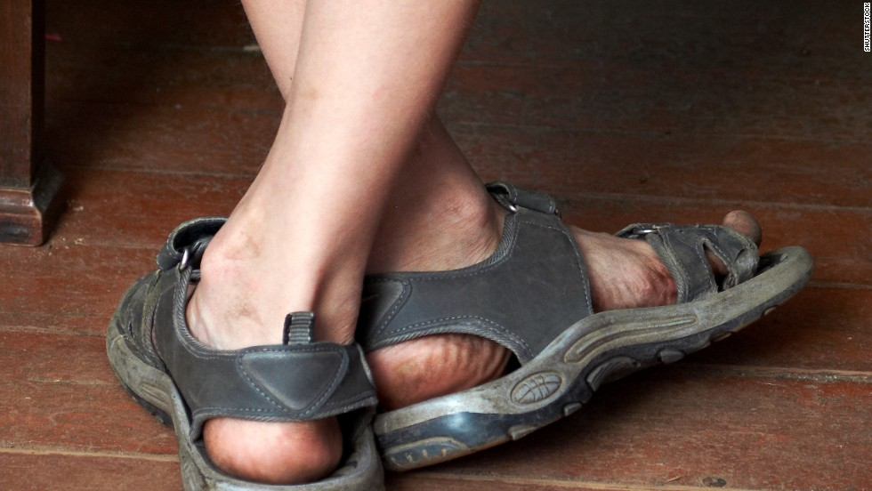 Open shoes: Just say no to grody toes!