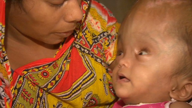 Indian baby with 94 cm head recovers