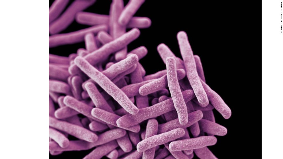 CDC sets threat levels for drug-resistant 'superbugs'