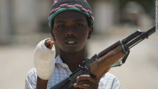 A boy belonging to Al-Shabaab shows the wound he suffered battling government forces in Mogadishu in a 2009 photo.