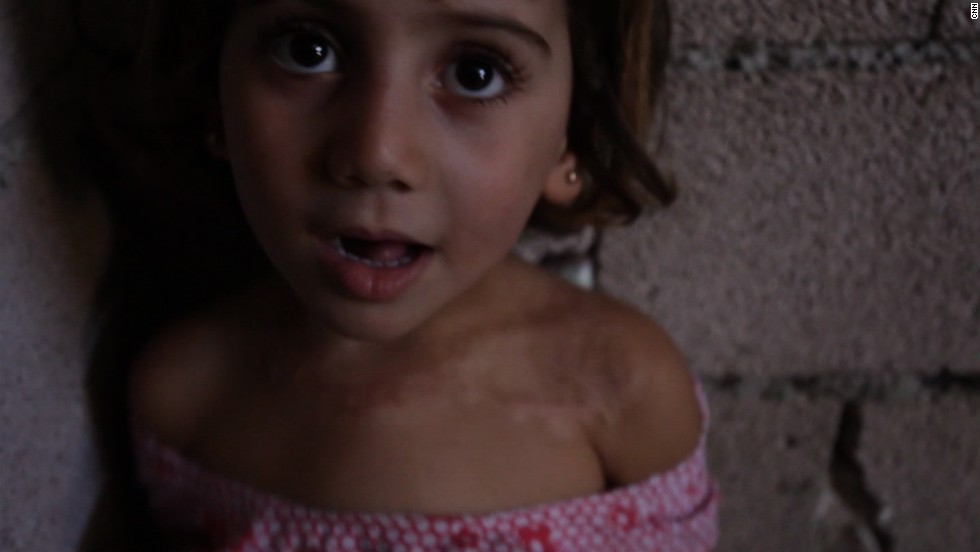 The U.N. estimates 4.25 million people are homeless inside Syria. This 4-year-old girl carries a physical scar of the ongoing conflict -- after being burned during shelling.<br />