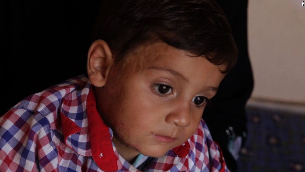 "This four-year-old boy suffered from burns in an attack. ""He was burned while he was at the house, they bombed the house, which collapsed on him, and there is no available treatment for him,"" his mother says."